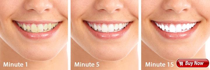 White Light Smile Teeth - Art