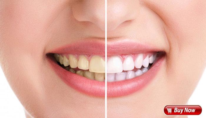 White Light Smile Teeth