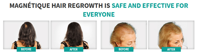Magnetique Hair Growth before after